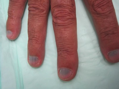 Minocycline Side Effects Hives
